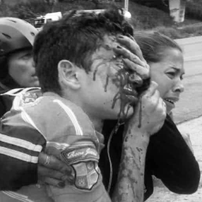 Frontera Digital,  ODH ULA, RUFO CHACÓN, Sucesos,  22 personas con disparos en sus ojos esperan justicia en Mérida
